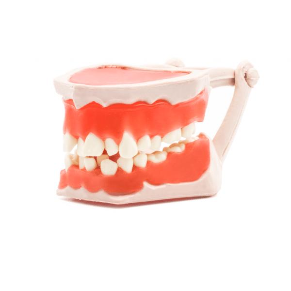 Tipodonto -Marca: Tirden Articuladores | Odontology BG